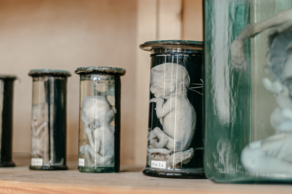 Не для слабонервных: музей медуниверситета - 3 зображення
